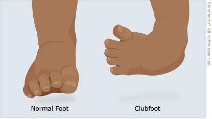 clubfoot image